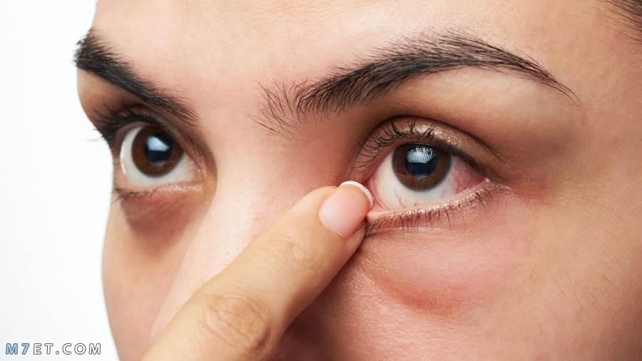 علاج انتفاخ تحت العين