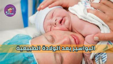 Photo of علاج البواسير بعد الولادة نهائيًا بأسهل طرق