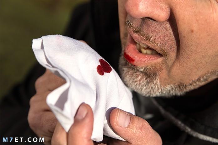 أسباب كحة الدم