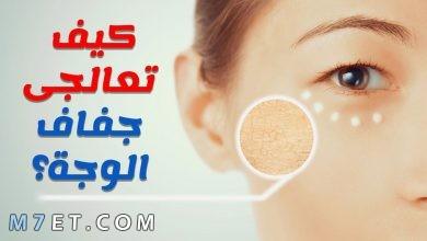 Photo of علاج جفاف الوجه بالأعشاب الطبيعية وأشهر كريمين لعلاج الجفاف من الصيدلية