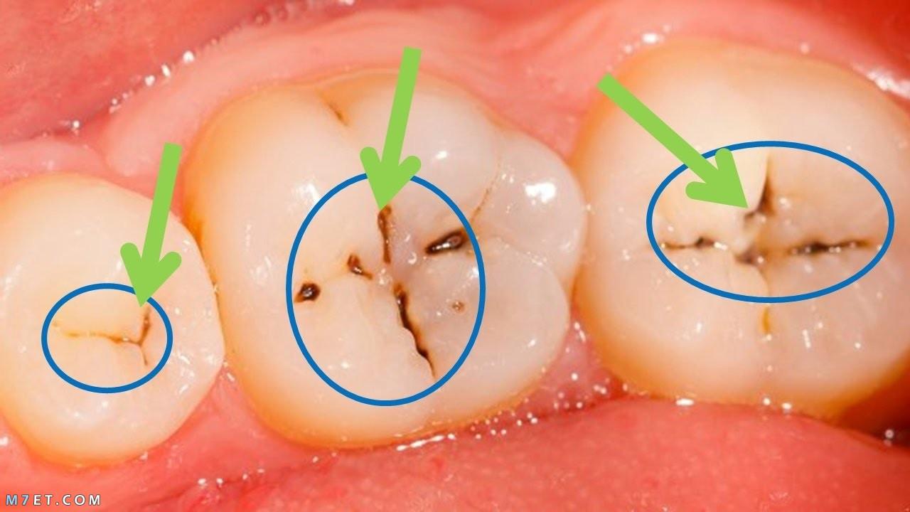 طرق ازالة تسوس الاسنان