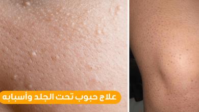 Photo of علاج حب الشباب تحت الجلد بـ 4 أعشاب طبيعية
