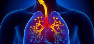 أعراض التهاب القصبات الحاد وطرق العلاج بـ 4 أعشاب طبيعية