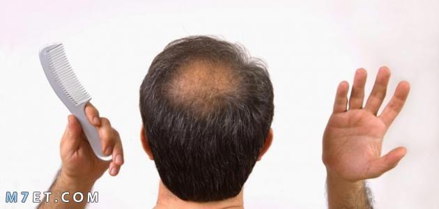 أسباب تساقط الشعر للرجال
