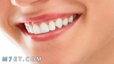 Photo of إزالة جير الأسنان بدون طبيب