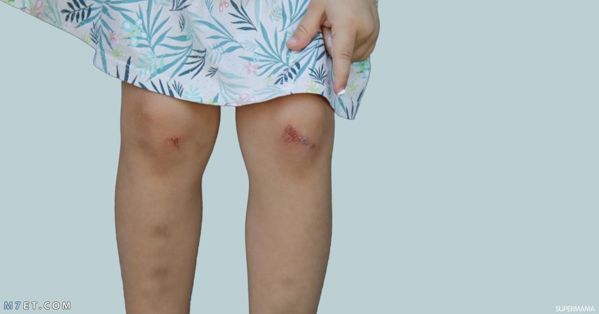 اسباب الكدمات الزرقاء في الساقين