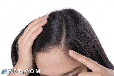 انبات الشعر بالثوم