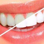 طريقة سريعة لتبيض الاسنان في المنزل