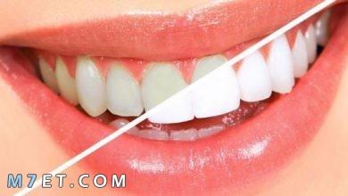 Photo of طريقة سريعة لتبيض الاسنان في المنزل