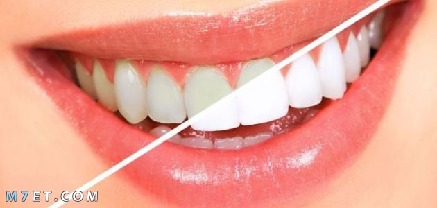 طريقة سريعة لتبيض الاسنان