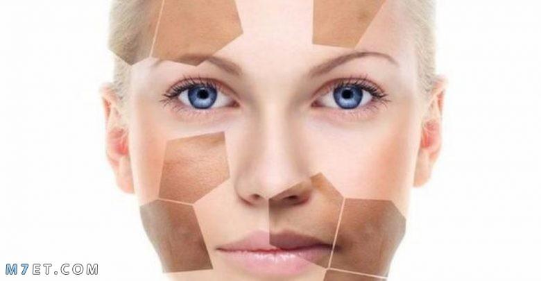 اسباب اسمرار الوجه