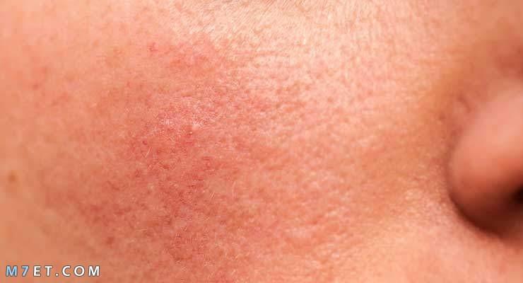 اسباب احمرار الوجه بعد الماسك