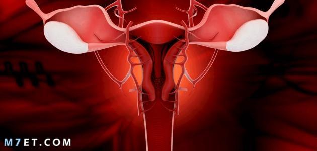 علاج نزيف الرحم