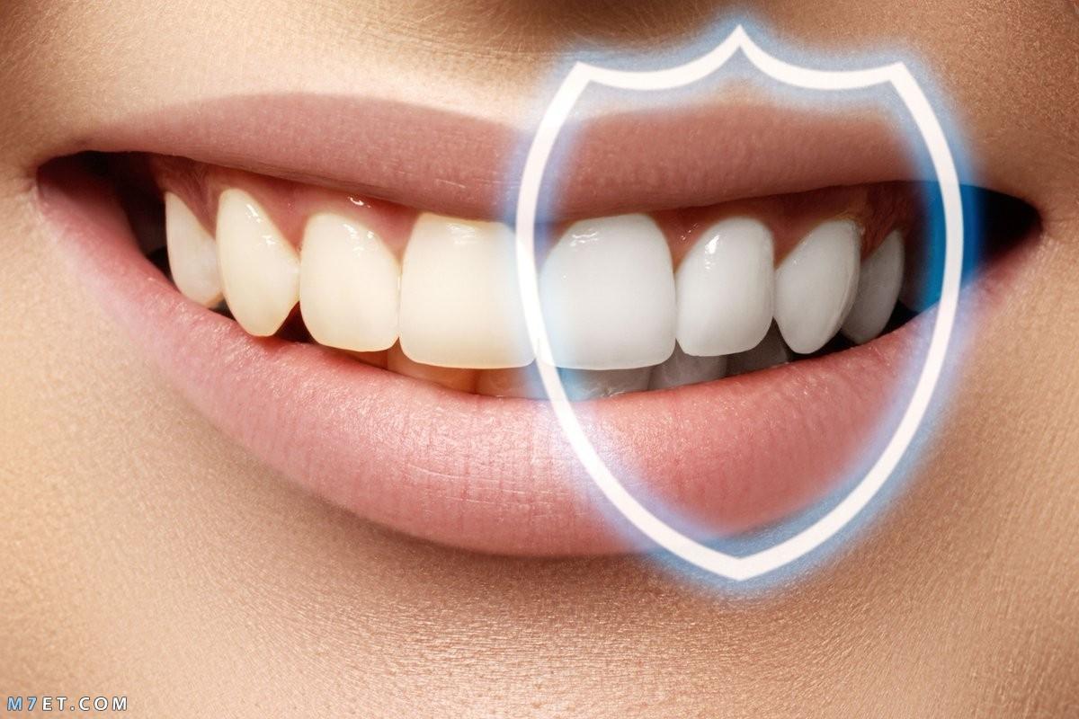 نصائح للوقاية من جير الأسنان