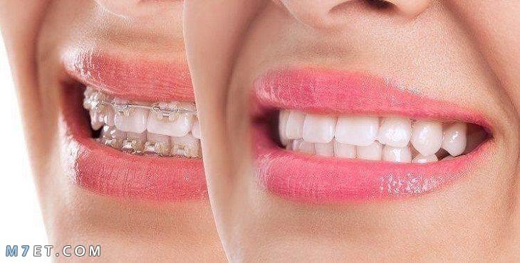 ما بعد تقويم الأسنان