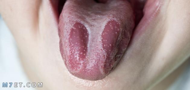 ما علاج فطريات اللسان