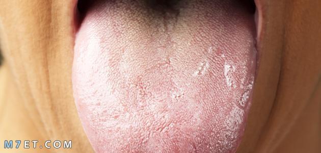 ما أسباب بياض اللسان وأهم أعراض الإصابة بهذا المرض