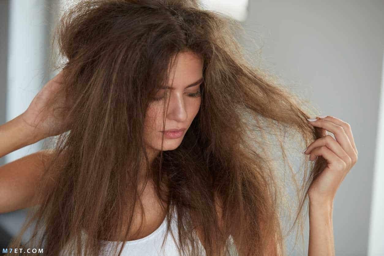 علاج نفشة الشعر