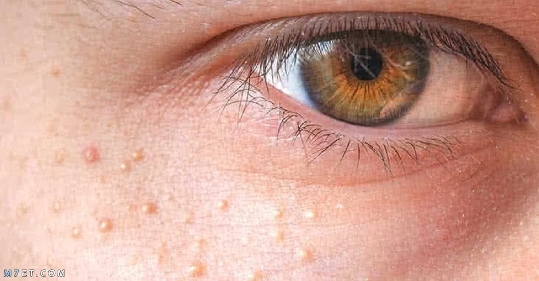 الحبوب الدهنية تحت العين