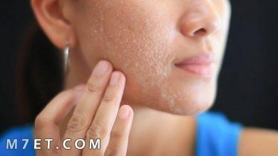 Photo of علاج قشرة الوجه بالأعشاب الطبيعية والكريمات