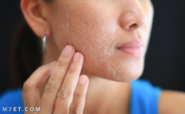 اسباب تقشر الوجه بعد الغسول وطرق العلاج بالوصفات الطبيعية