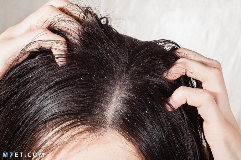 طريقة عمل شامبو طبيعي لتكثيف الشعر
