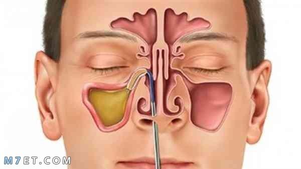 التهاب الجيوب الانفية المزمن