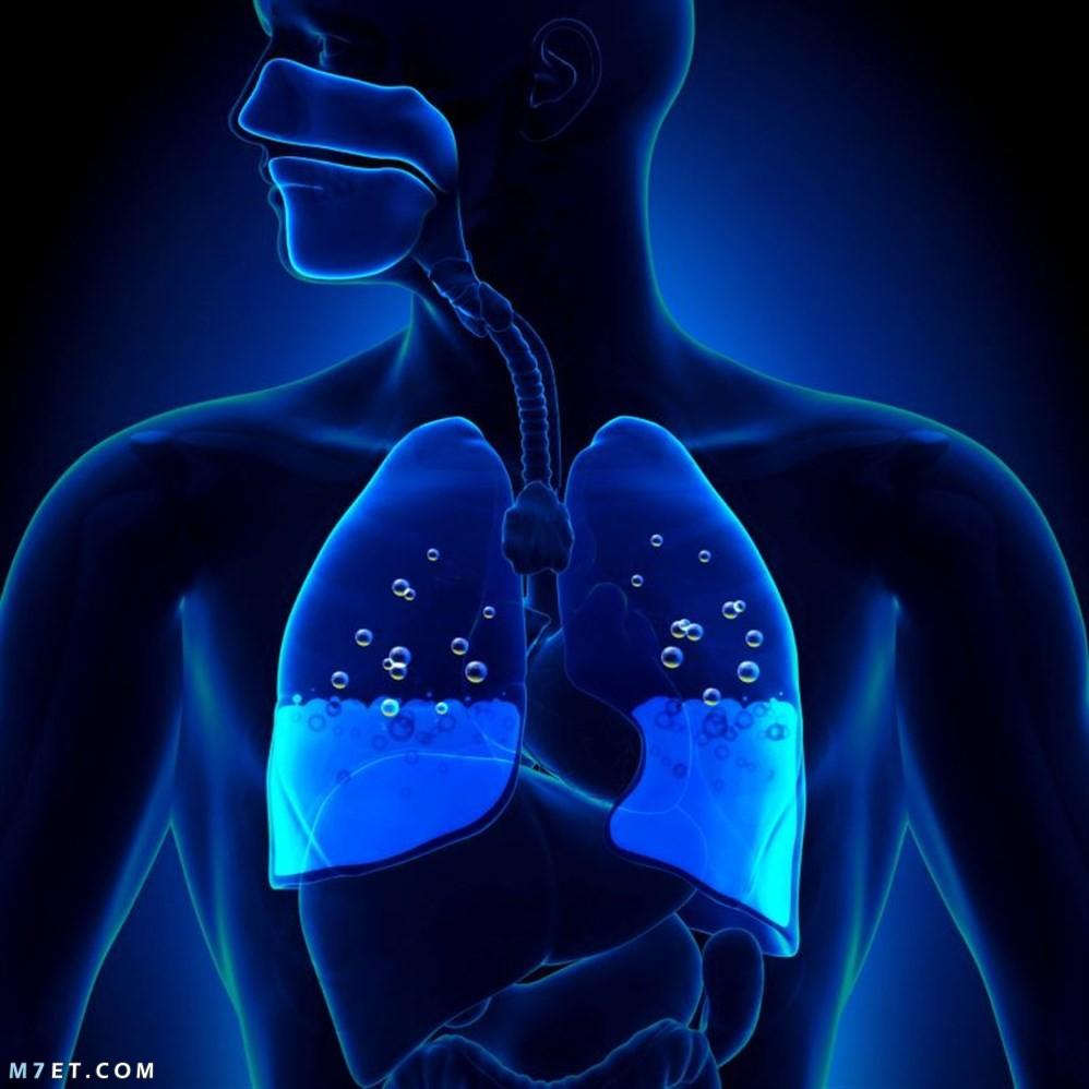 مضاعفات سحب الماء على الرئة وطرق العلاج بـ 3 أعشاب