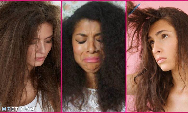 علاج نفشة الشعر بوصفات طبيعية وآمنه