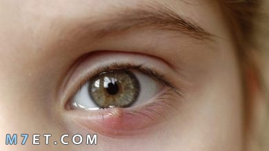 Photo of أسباب الحبوب الدهنية تحت العين وطرق العلاج بـ 5 أعشاب