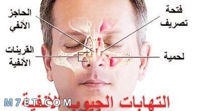Photo of أسباب وأعراض التهاب الجيوب الانفية المزمن وطرق العلاج بالتفصيل