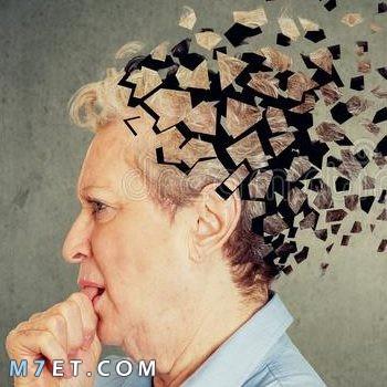 أسباب فقدان الذاكرة المؤقت