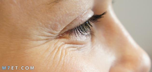 علاج تجاعيد الوجه بالعسل