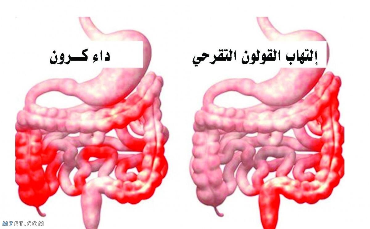 اعراض داء كرون وطرق العلاج بـ 3 أعشاب طبيعية