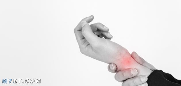 علاج التهاب اوتار اليد
