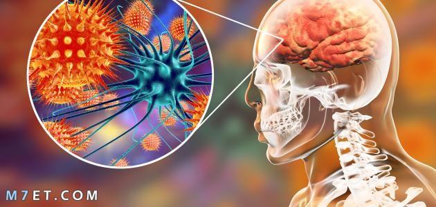 اعراض التهاب السحايا الفيروسي