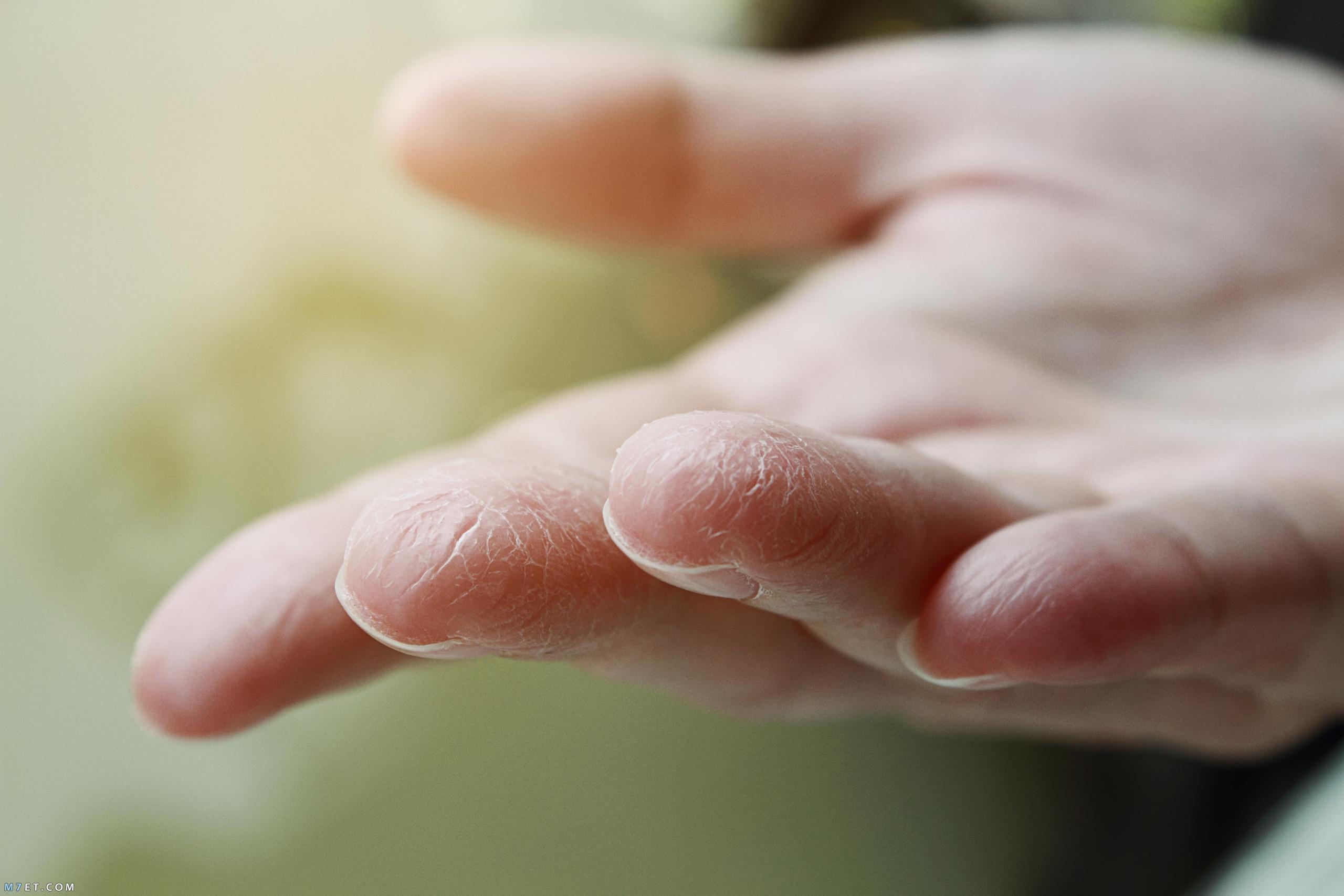 علاج جفاف الجلد