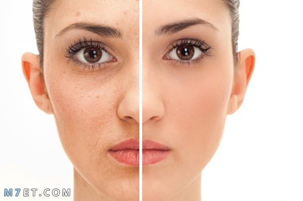 نصائح للوقاية من ظهور حبوب الوجه