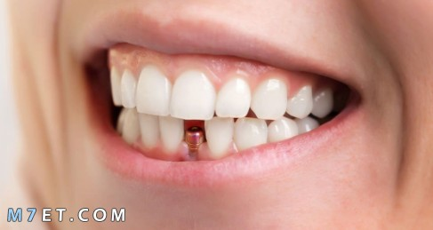 كيف تتم زراعة الاسنان
