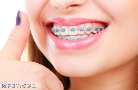 كيف نحافظ على نظافة الاسنان
