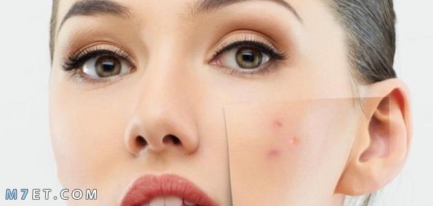 ماسك طبيعي لإزالة آثار الحبوب من الوجه 2021