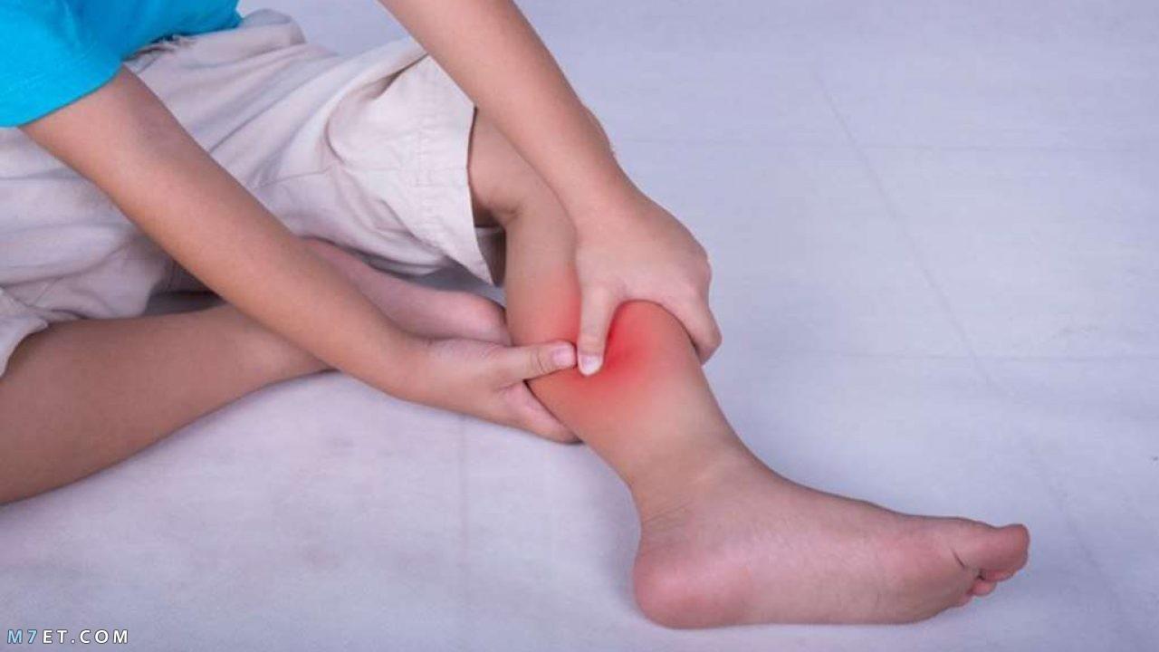 أسباب الشد العضلي في الساق أثناء النوم