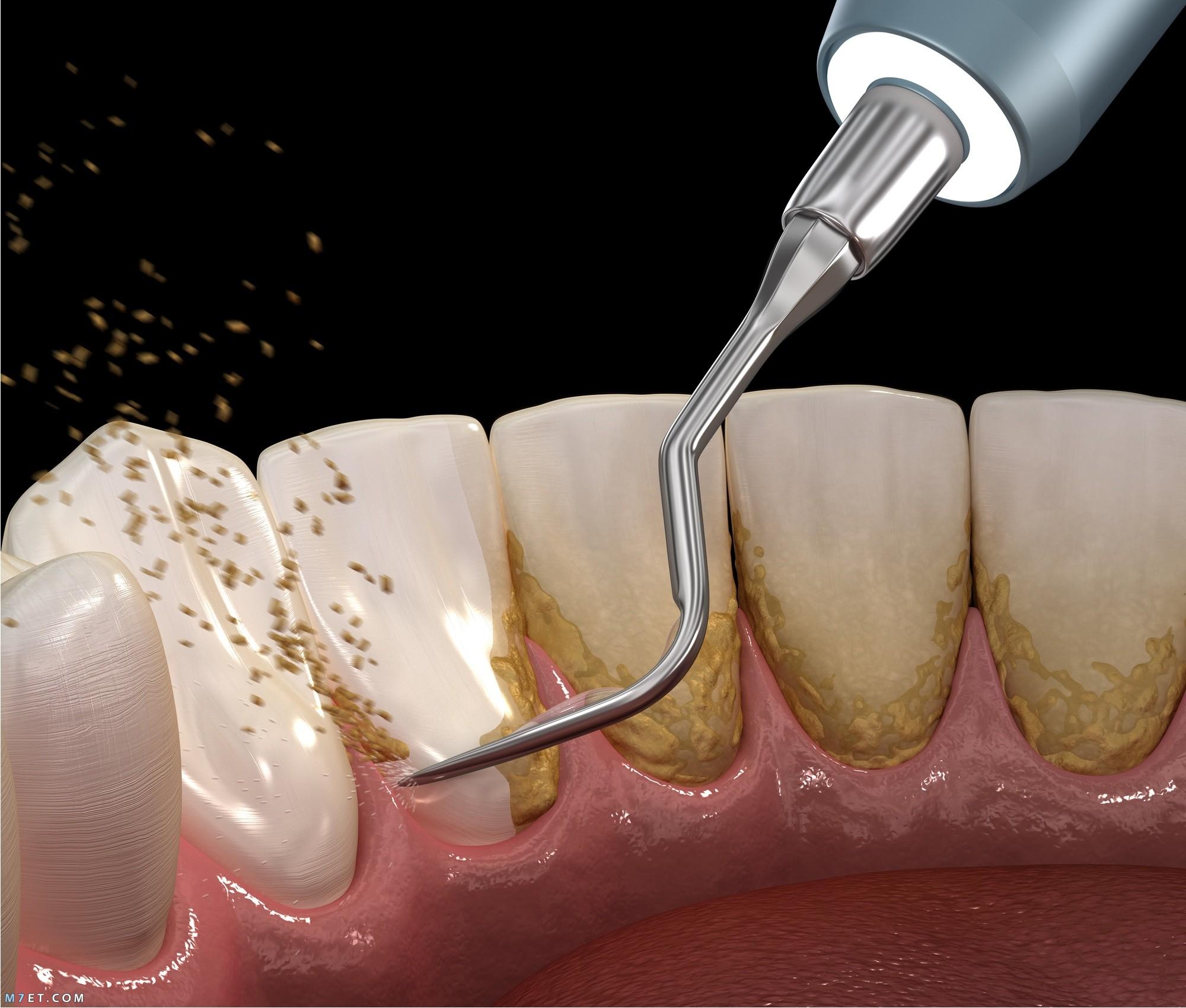اضرار تنظيف الاسنان عند الطبيب