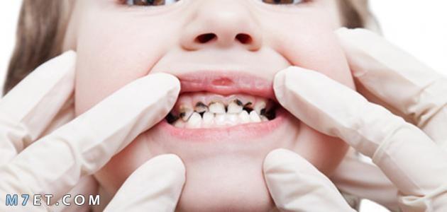 علاج تسوس الأسنان بالقرنفل