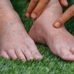 اعراض ارتفاع نسبة الاملاح في الجسم وطرق العلاج بـ 4 أعشاب طبيعية