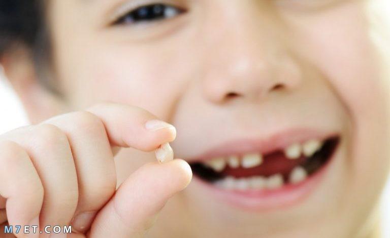 اسباب سقوط الاسنان