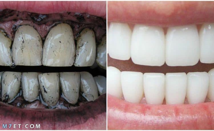 اسهل طريقة لتبييض الاسنان