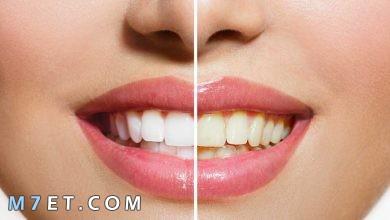 Photo of طريقة تنظيف الاسنان بالخطوات في المنزل