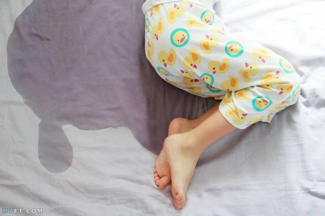 أسباب تبول الأطفال أثناء النوم 2021