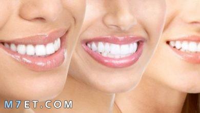 Photo of افضل خلطة لتبييض الاسنان